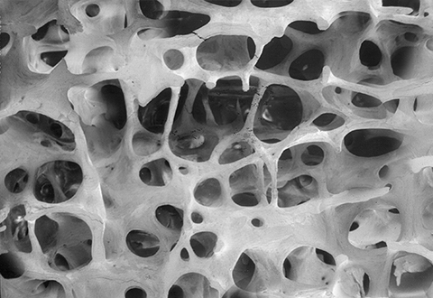 Interactive image of bone with a T-score of -2.5 or lower, which is defined as osteoporosis.