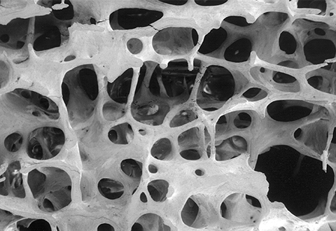 Interactive image of bone with a T-score of -3.0, which shows how osteoporosis continues to weaken bone.